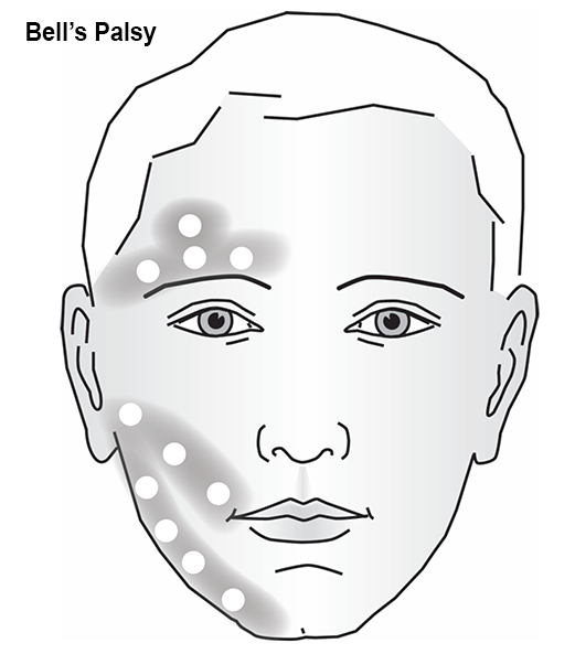 Head And Face Diagrams Lzr Ultrabright