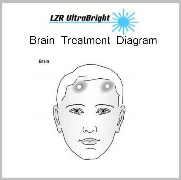 Head and Face Treatments 3 BRAIN TREATMENT DIAGRAM